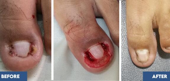 Treatment-ingrown-toe-nail