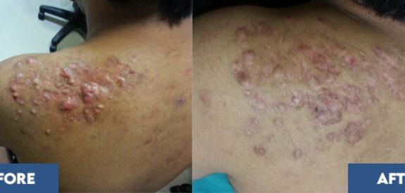 Treatment of Keloids
