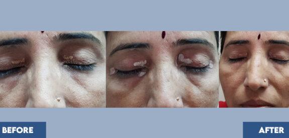 Treatment-xanthelesma