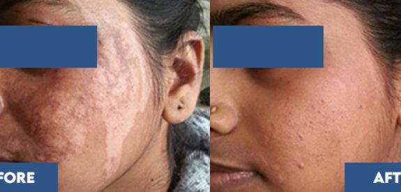 Phototherapy for vitiligo