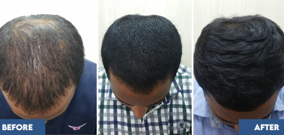 medical-hair-transplant-male-set01