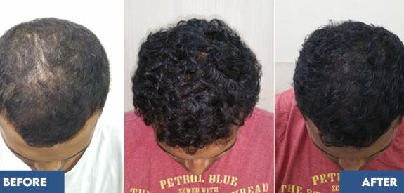 medical-hair-transplant-male-set02