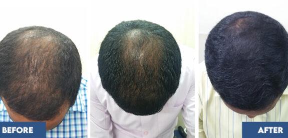medical-hair-transplant-male-set03