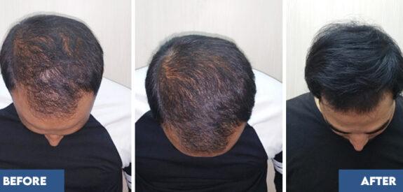 medical-hair-transplant-male-set04