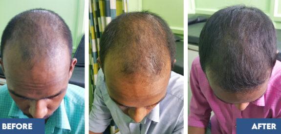 medical-hair-transplant-male-set05