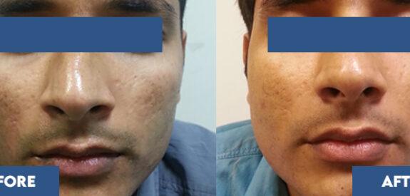 Fractional Co2 Laser for Skin Rejuvenation