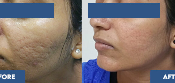 Frac Co2 Laser for Acne Scars