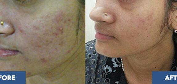 severe-acne01