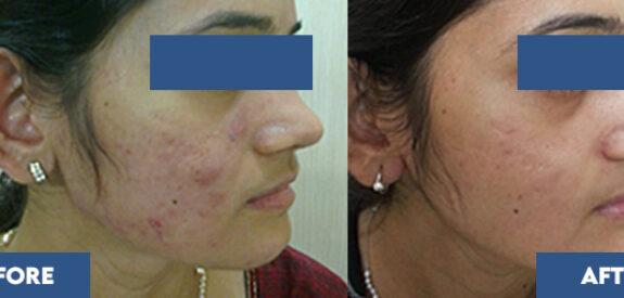 severe-acne02