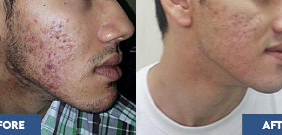 severe-acne03